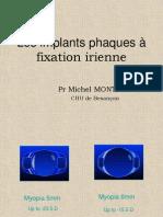 Implants Phaques