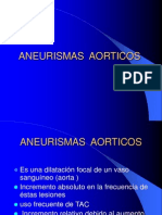 aneurismas _aorticos