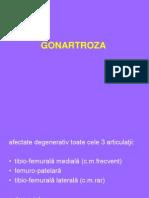 Gonartroza