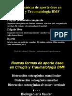 Injertos Para Implantes Prof. Dr. Adrian c Bencini