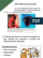 Torsión del lobulo Pulmonar