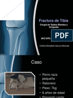Fractura Tibia