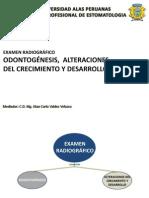 Odontogenesis y Desarrollo Maxilar