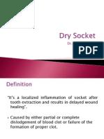 dry socket.pptx