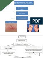 Patofisiologis Spider Naevi pada Sirosis.pptx