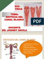 Distocia Del Canal Blando
