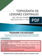 Topografía de Lesiones Centrales