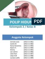 Polip Hidung - Tht- Kel2