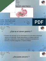 cncer gstrico