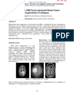 A Survey on MRI based automated Brain Tumor Segmentation Techniques