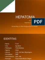 ppt preskas Hepatoma