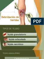 Debridación de Heridas enfermería