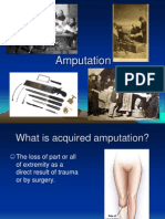 Amputation 2008 Version 4