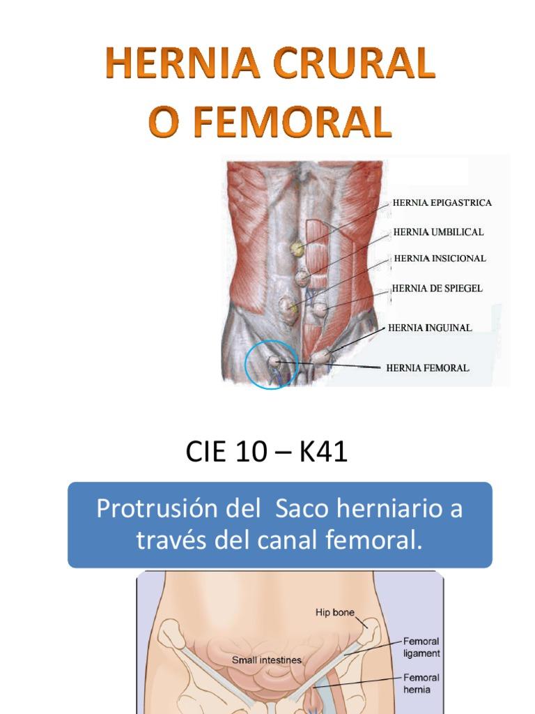 Schön Umbilical Hernia Anatomy And Physiology Zeitgenössisch ...