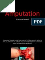 miranda campbell- amputation