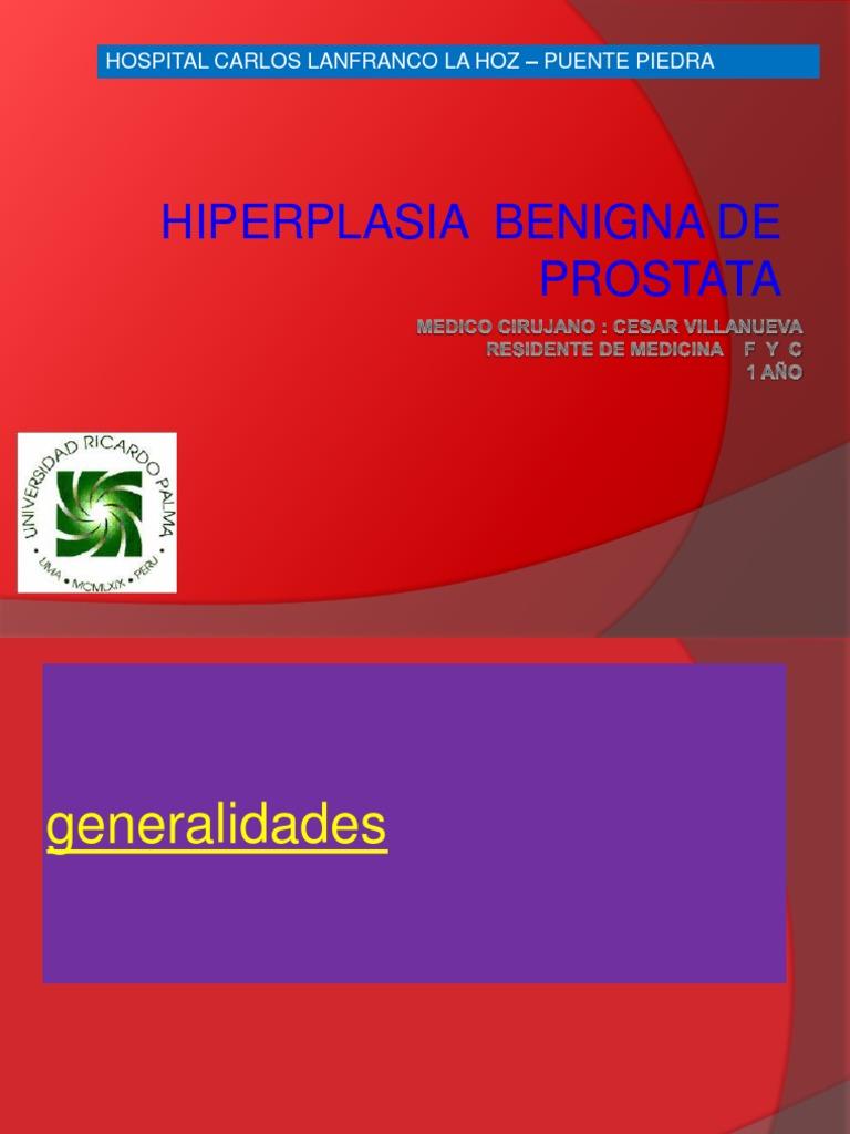 hiperplasia prostatica benigna smith ppt
