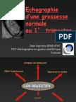 1BeneventEchoTrim1