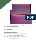 Elektroferogram Restriksi & Elektroforesis