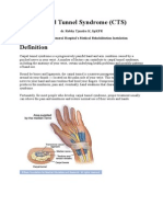 Carpal Tunnel Syndrome (Rev)