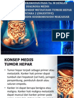 Tumor Hepar