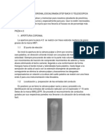 Tecnica Apico Coronal