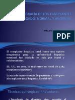 Expo Ultrasonografía de Los Trasplantes de Hígado