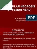 Avascular Necrosis of Femur head DR Akbar