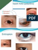 Penyakit Kelopak Mata (Palpebra)