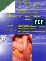 rezectie pancreatica