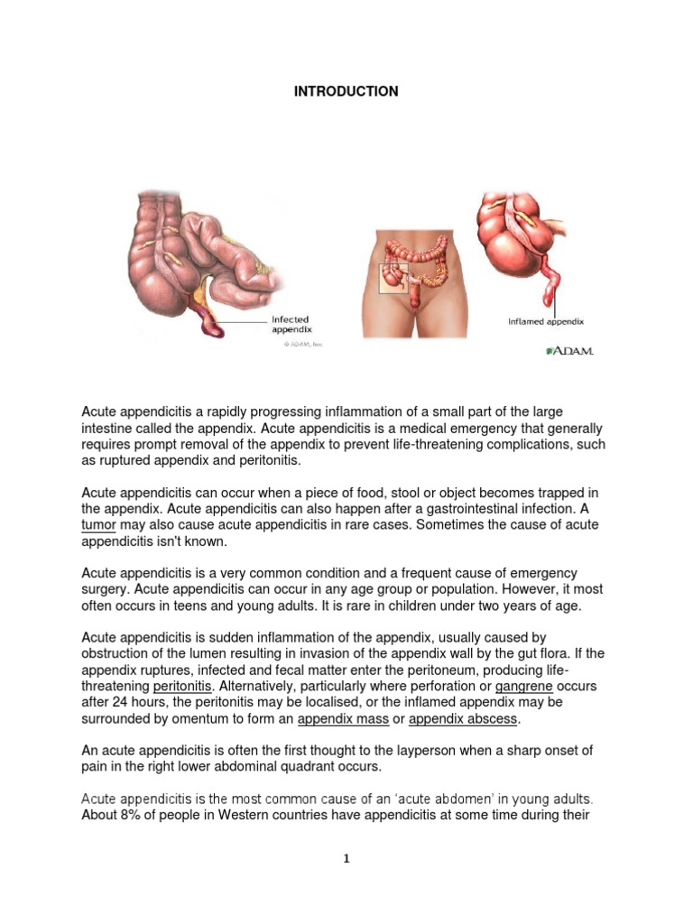 Acute Appendicitis | Gastroenterology | Health Sciences