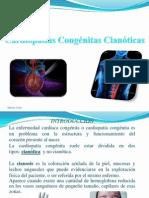 Cardiopatascianticas Niño
