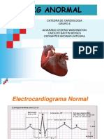 Cardio Ekg Anormal