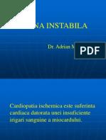 Angina Instabila 7576767