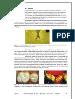 Selante de Fossulas e Fissuras Apostila(1)