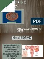 Cáncer de Ovario Final