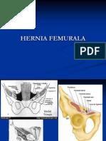 Hernia Femurala Si Restul