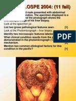 Pathology of CNS Tumors