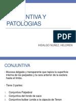 Conjuntiva y Patologias