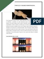 Aplicación de Luz y Color en Odontologia