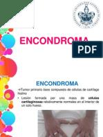 Encondroma