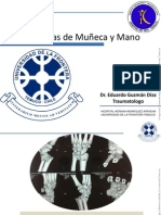 Fracturas de Muñeca y Mano