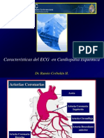 Cardiopatia isquemica y ECG