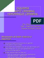 Isquemia e Infarto Cerebral