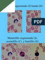 Atlas a Color de Hematologia