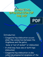 Congenital Dyslocation of the Hip