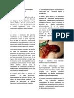 Torsion apendicular
