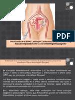 Embolizacion de La Arteria Uterina Para Leiomiomas