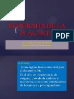 7. Ecografia de Placenta