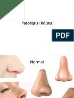 Patologis Hidung