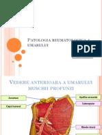 Periartrita scapulo-humerala